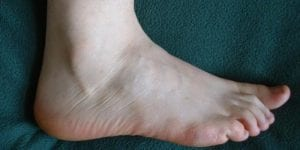 Sideview of Foot